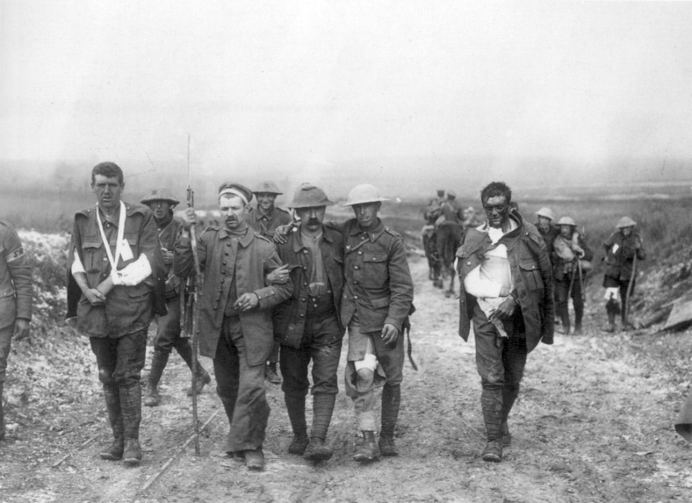 British_wounded_Bernafay_Wood_19_July_1916